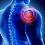 Treatments for shoulder pain